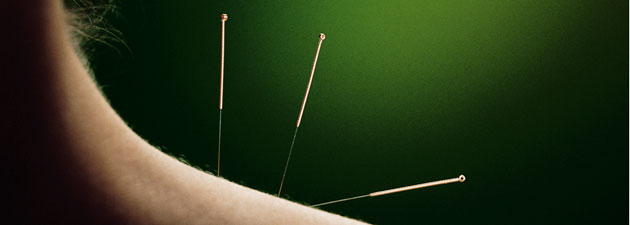Delray Florida acupuncture